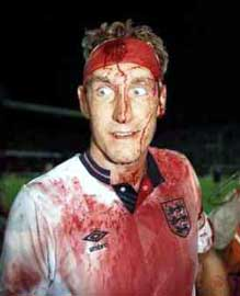 Terry Butcher  blood